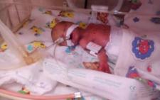 Двоє новонароджених чернівчан боряться за життя (фото)