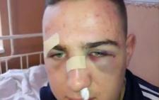 На Буковині школярів, які заступились за дівчину, жорстоко побили на дискотеці у сільському клубі (відео)